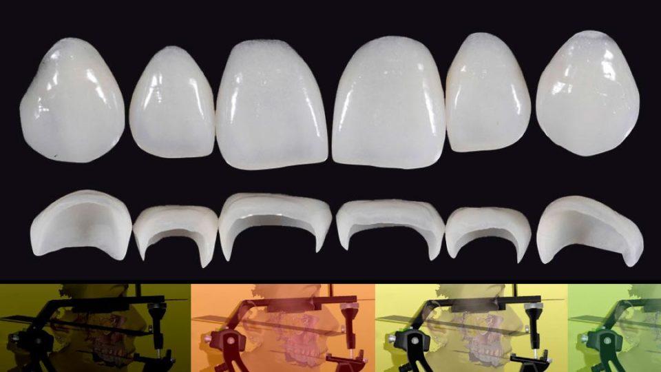Restorative strategies in tooth-supported rehabilitations – Speaker: Giacomo Fabbri