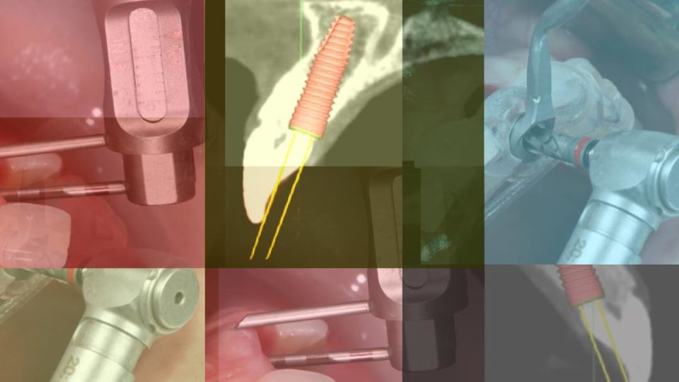 New Surgical Technique IMMEDIATE DENTOALVEOLAR RESTORATION – Immediately loaded implants in compromised sockets – Speaker: Jose Carlos Martins Da Rosa