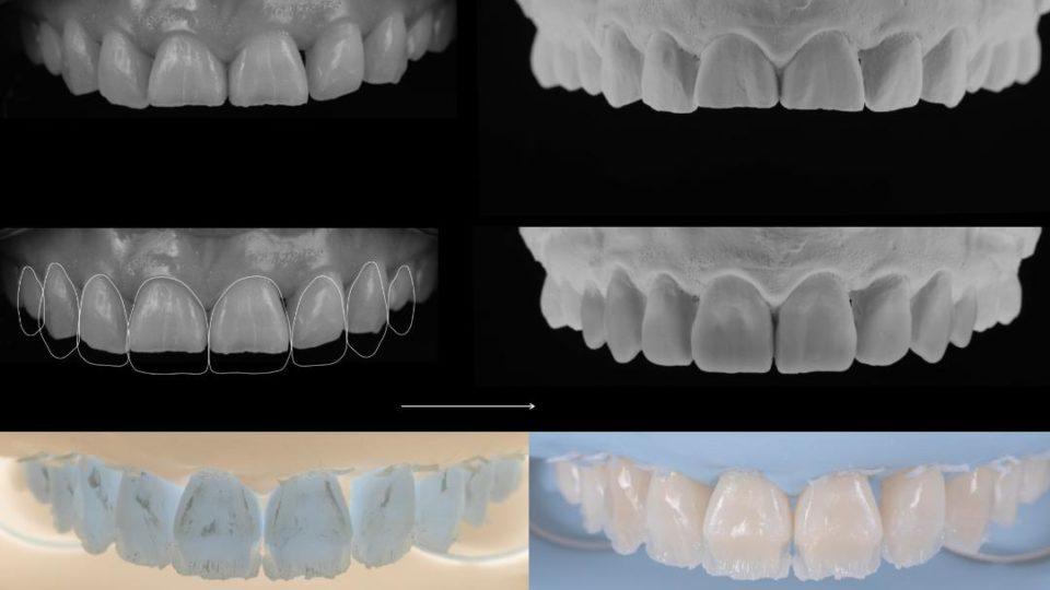 Full day course in direct restorations, focus on morphology & shape analysis – Speaker: Tony Rotondo